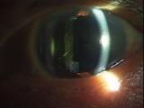 matureSIpostope160pixel